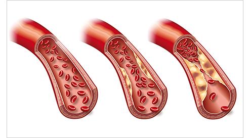 Arteriosklerose – das tückische Gefäßleiden