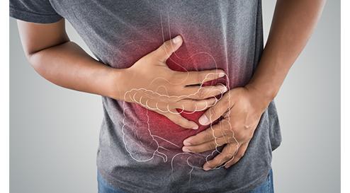 Chronisch-entzündliche Darmerkrankungen (CED) - Intestinaler Schwelbrand