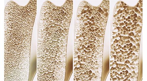 Prävention osteoporotischer Frakturen durch gemeinsame Gabe von Vitamin D und Calcium