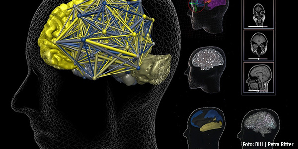 Gehirnaufnahmen auf Computer