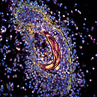 Rodent hookworm trapped in granuloma by immune cells