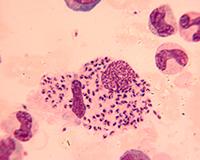 Leishmania amastigotes